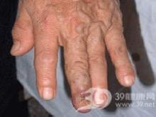 伤口形成一个搏动性肿块