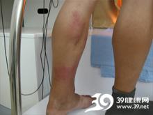 下肢皮肤营养性改变