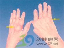 手的歪扭畸形