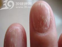 手指甲有白色斑点