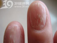手指尖痛或触痛