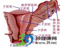 输卵管粘连