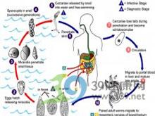 血吸虫导致的肝硬化