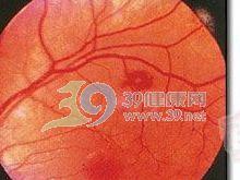 视网膜Roth斑