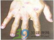 水疱或大疱损害