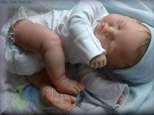 婴儿头皮有黄色结痂