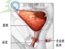 输尿管疼痛