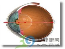 角膜晶状体粘连