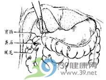结肠内形成坚硬的粪石