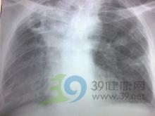 管性呼吸音