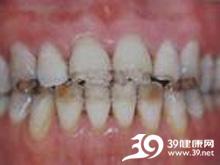 牙釉质腐蚀