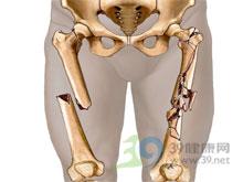 大腿局部肿胀变形
