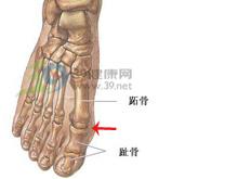 第1跖趾关节疼痛和肿大