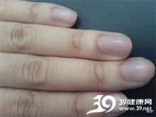 指甲上起小细粒
