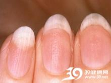 中指半月甲呈粉红色