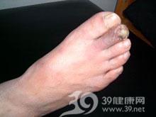 足趾发凉怕冷,呈苍白色或紫红色