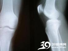 膝后肿胀疼痛,活动受限