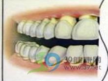 牙齿形态异常