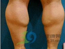 孕妇小腿浮肿