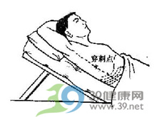 肋间肩胛带疼痛