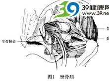 坐骨大小孔区出现压痛