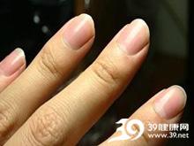 指甲出现条纹或斑点