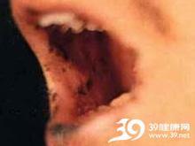 口腔粘膜色素沉着