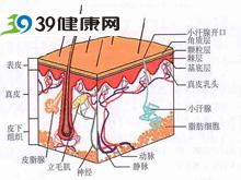 皮下沉积所出现的粟粒样结节