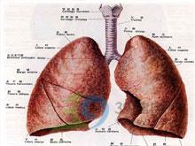 肺源性呼吸困难