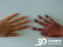 指甲有红色或黑色斑点