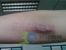 挛缩性疤痕