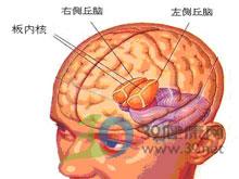 侧脑室增宽