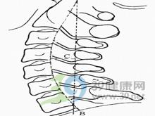 颈髓硬膜外病变