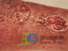结节性梅毒疹